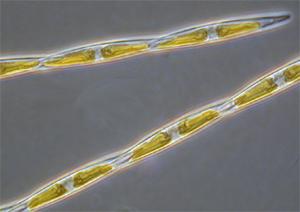 domoic-acid-diatom